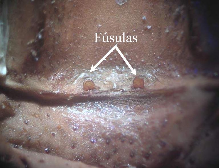 fusulas macho tarantulas